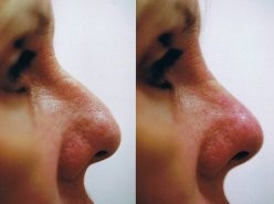 non surgical rhinoplasty dermal filler NZ