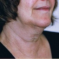 thread face lift neck lift before