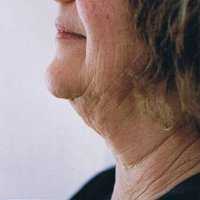 thread face lift neck lift side1 before