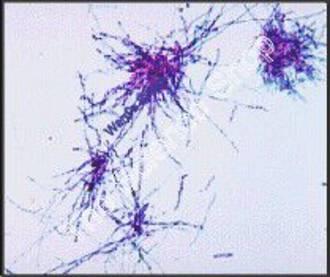 Mnium Protonema (wm) FS and FG