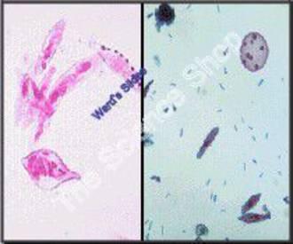 Protist Motility (wm) 3 Classes represented including: Amoeba Euglena and Paramecium
