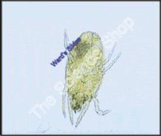 Dust Mite Dermatophagoides (wm)