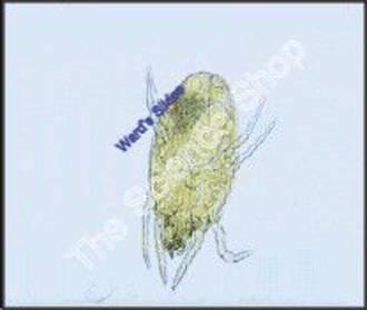 Dust Mite Dermatophagoides (wm)