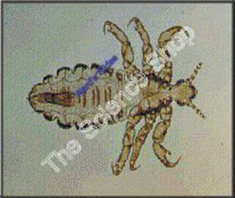 Head Louse human Adult Specimen (wm)