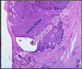 Skin Cancer (sect) human Basal cell carcinoma H and E