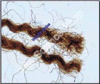 Blood Stained Textile Fibers (wm) Dyed versus bloodstained on one slide