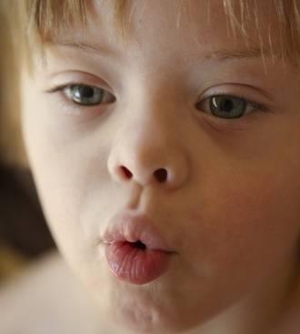 Childhood apraxia of speech