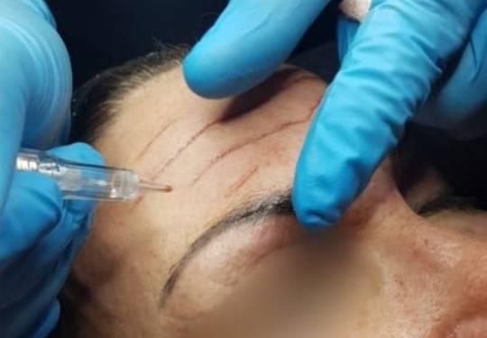 Advanced Dermal Needling - ONLINE ROADSHOW 2020