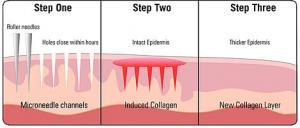 dermal-micro-needling-article-1