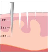dermal-micro-needling-article-3